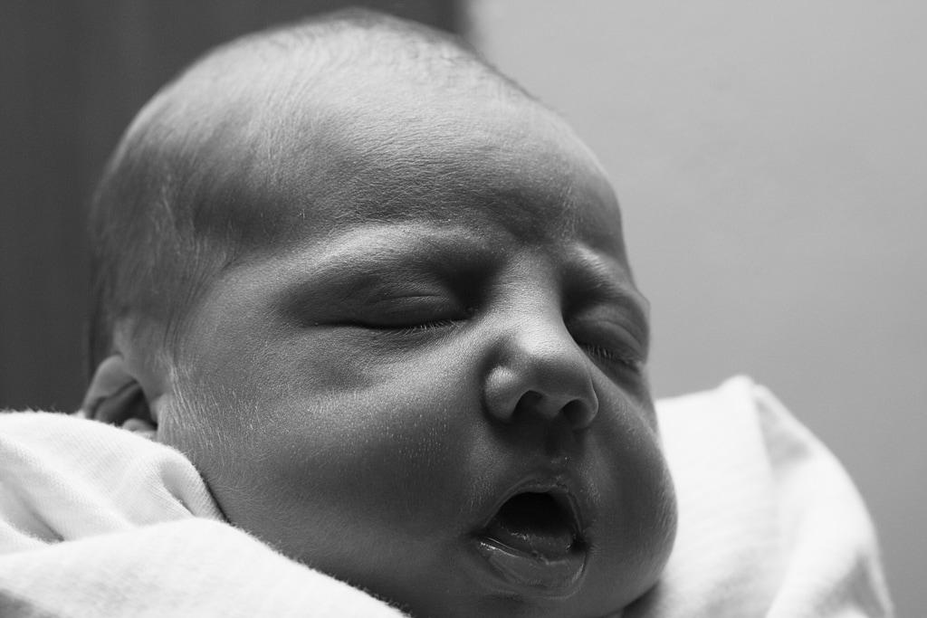 Bebé sin barbilla :(